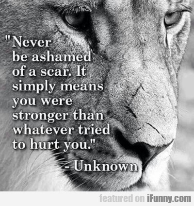 Never Be Ashamed Of A Scar. It Simply Means...