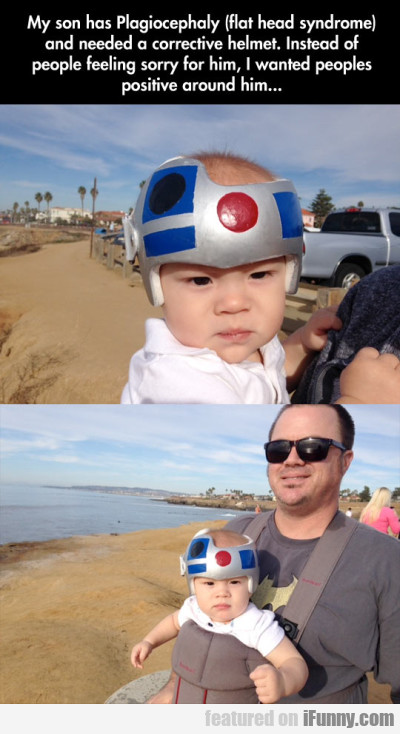 My Son Has Plagiocephaly (flat Head Syndrome)..