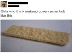 Girls Who Think Make Up Covers Acne Look Like...