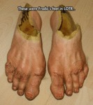 These Were Frodo's Feet In Lotr...