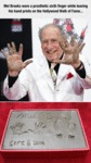 Mel Brooks Wore A Prosthetic Sixth Finger...