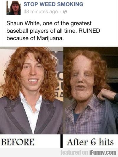 Shaun White One Of The Greatest