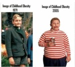 Image Of Childhood Obesity 1971...