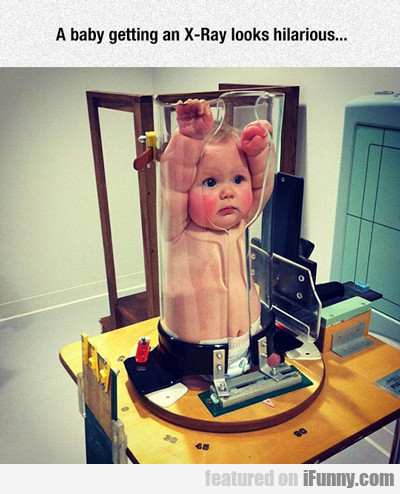 A Baby Getting An X-ray...