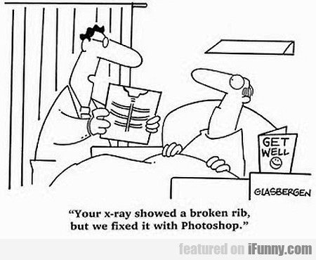 Your X-ray Showed A Broken Rib