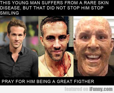 this young man suffers from...