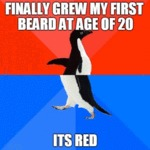 Finally Grew My First Beard At Age 20...