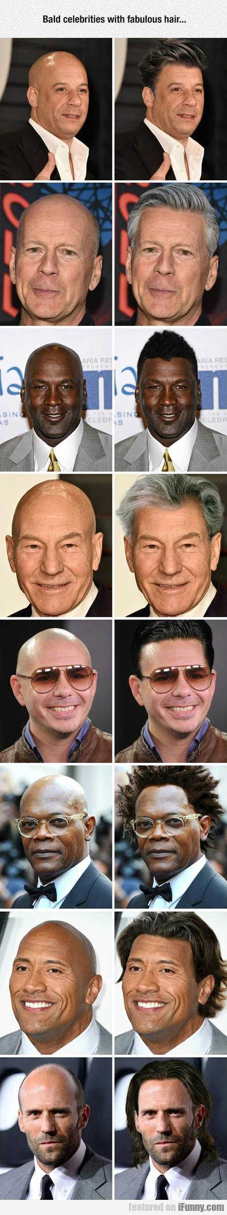 If Bald Celebrities Had Hair