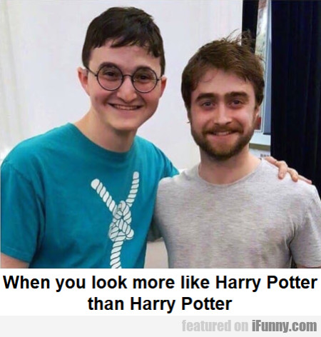 When You Look More Like Harry Potter Than...