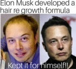 Elon Musk Developed A Hair Re Growth Formula...