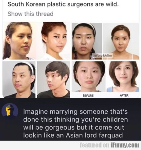 South Korean Plastic Surgeons Are Wild - Imagine..
