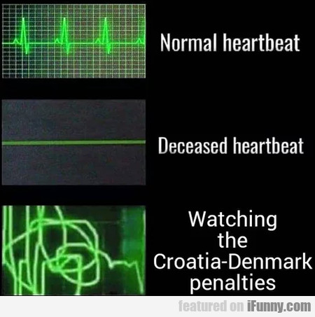 Normal Heartbeat - Deceased Heartbeat - Watching..