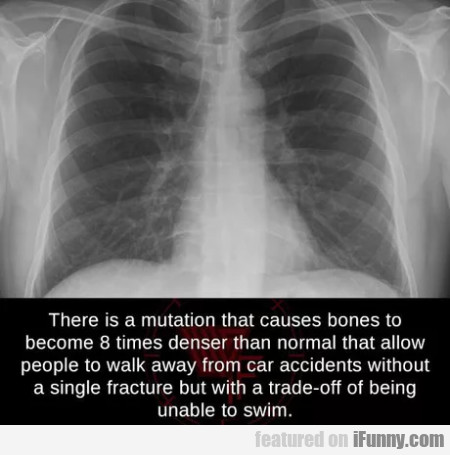 There Is A Mutation That Causes Bones To Become...
