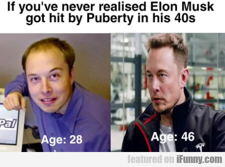 If You've Never Realised Elon Musk Got Hit By...