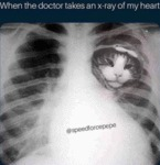 When The Doctor Takes An X-ray Of My Heart...