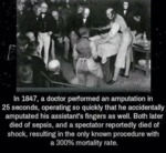 In 1847, A Doctor Performed An Amputation In 25...