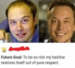 Future Goal - To Be So Rich My Hairline Restores..